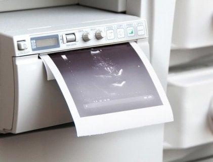 Videoprinterpapier und Drucker
