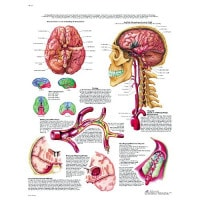 "Anatomical board ""Stroke"""