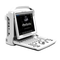CHISON ECO3 Expert Ultrasound Machine