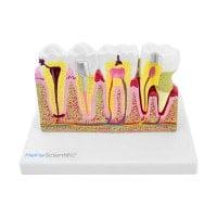 Modèle de dent avec maladies