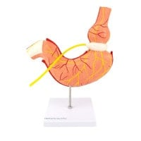 Maagmodel met maagband