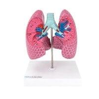 Modèles de poumon avec maladies