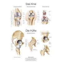 """Lehrtafel """"Das Knie/ Die Hüfte"""""""