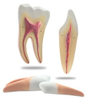 Tooth Models, disassemblable