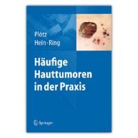 Häufige Hauttumoren in der Praxis, Buch