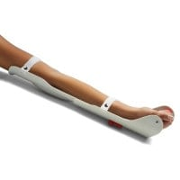 Extendable Arm Splint for Infusions