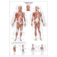 "Anatomical board ""Physiotherapy: Triggerpoints"""