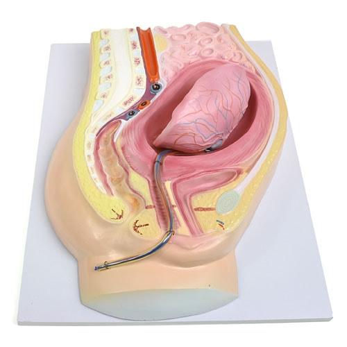 Anatomical Model of Placental Abruption