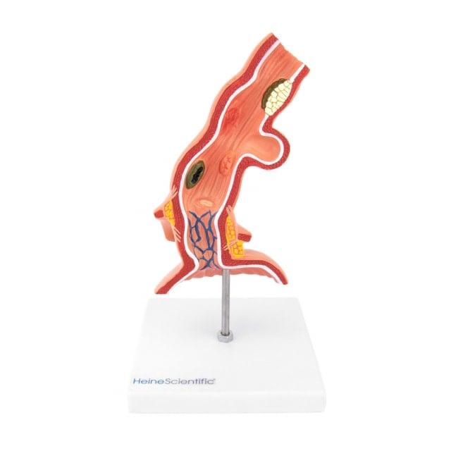 Modello di esofago con malattie