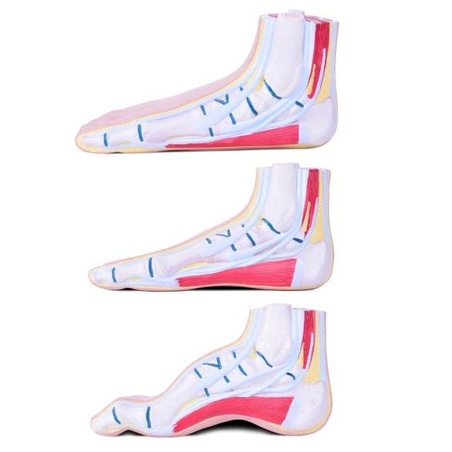 Modell der Fußfehlstellungen