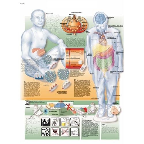 """Anatomische Wandplaat """"Diabetes"""""""
