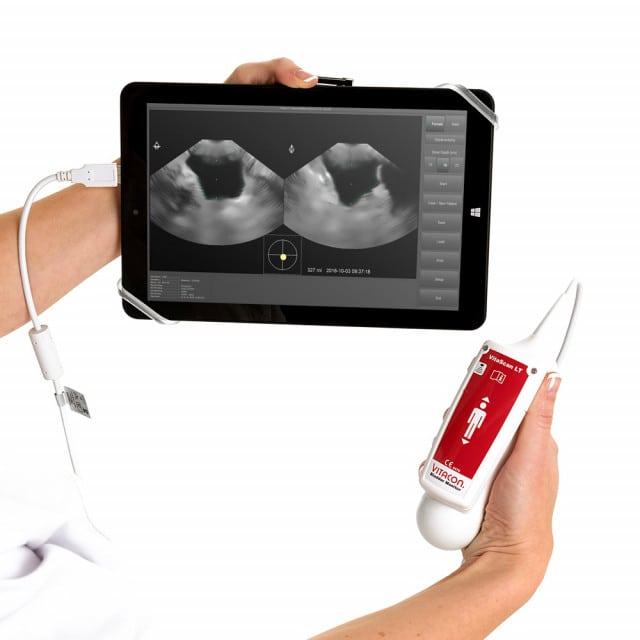 VitaScan LT scanner vescicale, dispositivo a ultrasuoni 3D per valori di misurazione precisi