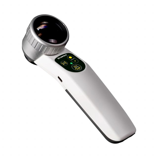Dermatoscope Visiomed Luminis 2