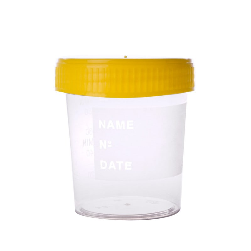 Sterile urine cup with yellow screw cap and scale up to 120 ml