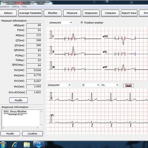 EDAN ECG Software
