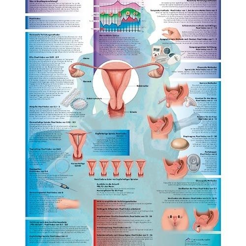 "Wall Chart ""Contraception"""