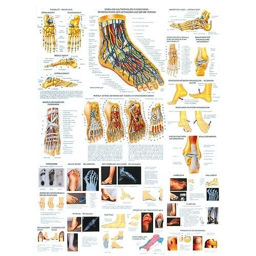 "Wall Chart ""Foot and Foot Diseases"""