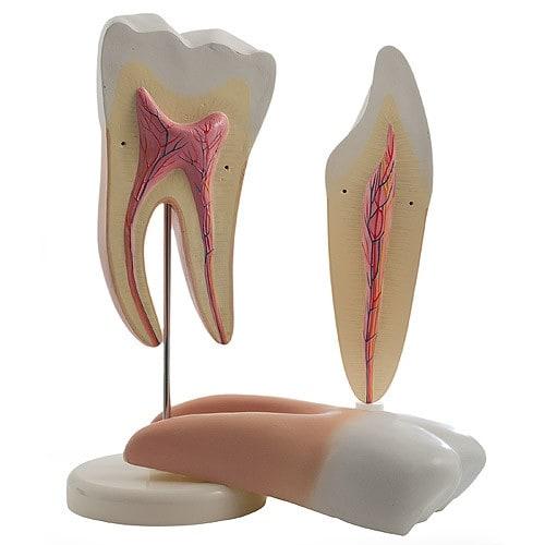 Modèle de dent