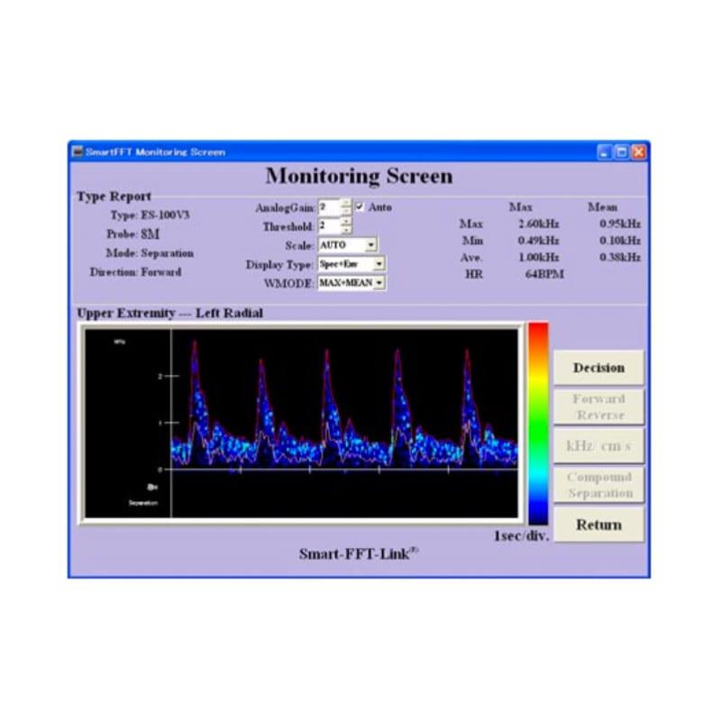 Smart-V-Link software