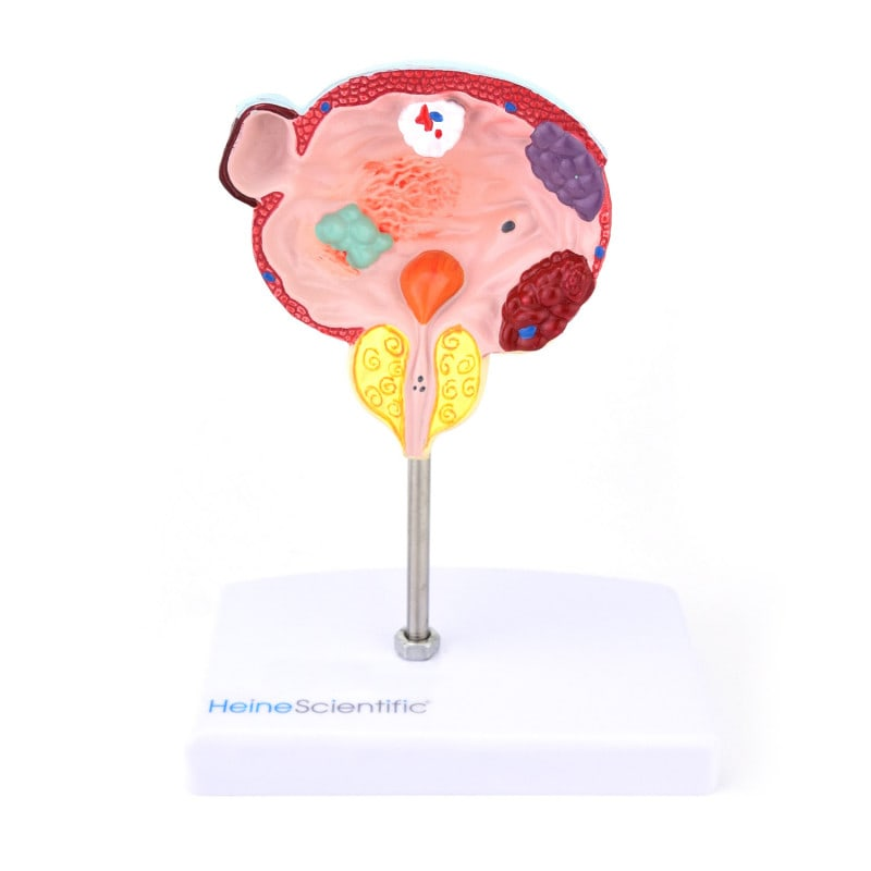 Anatomical model of the bladder and prostate with common diseases
