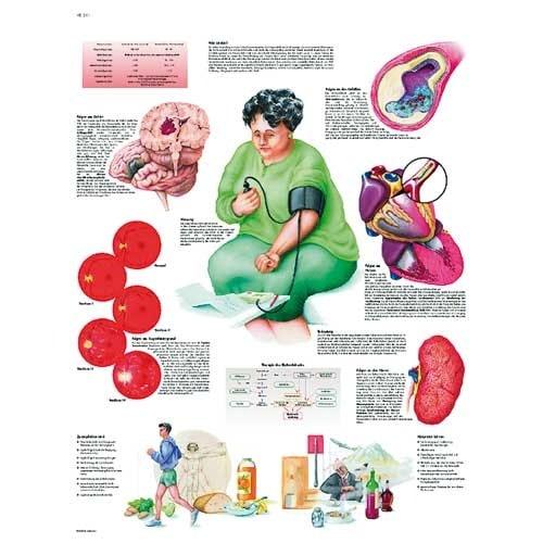 Planche anatomique « tension artérielle »