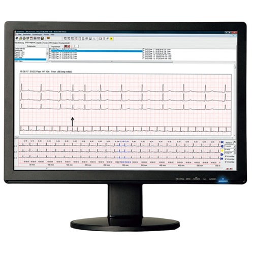 https://static.praxisdienst.com/out/pictures/generated/product/2/800_800_100/smartholter24_langzeit_ekg_system_komplett_set_132492_3.jpg