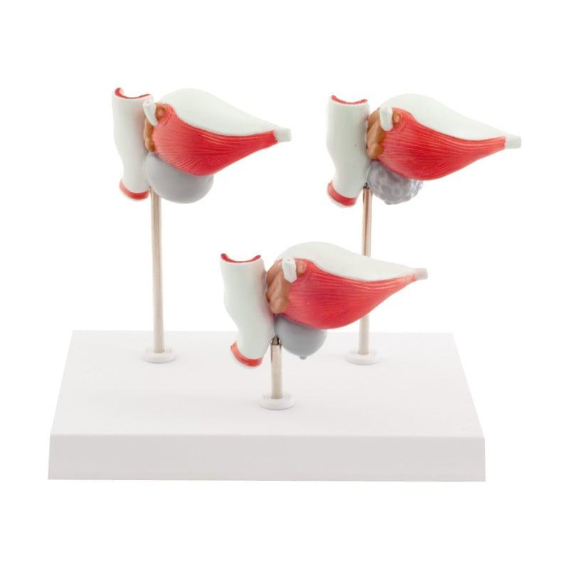 3-teiliges Prostata-Modell mit Erkrankungen
