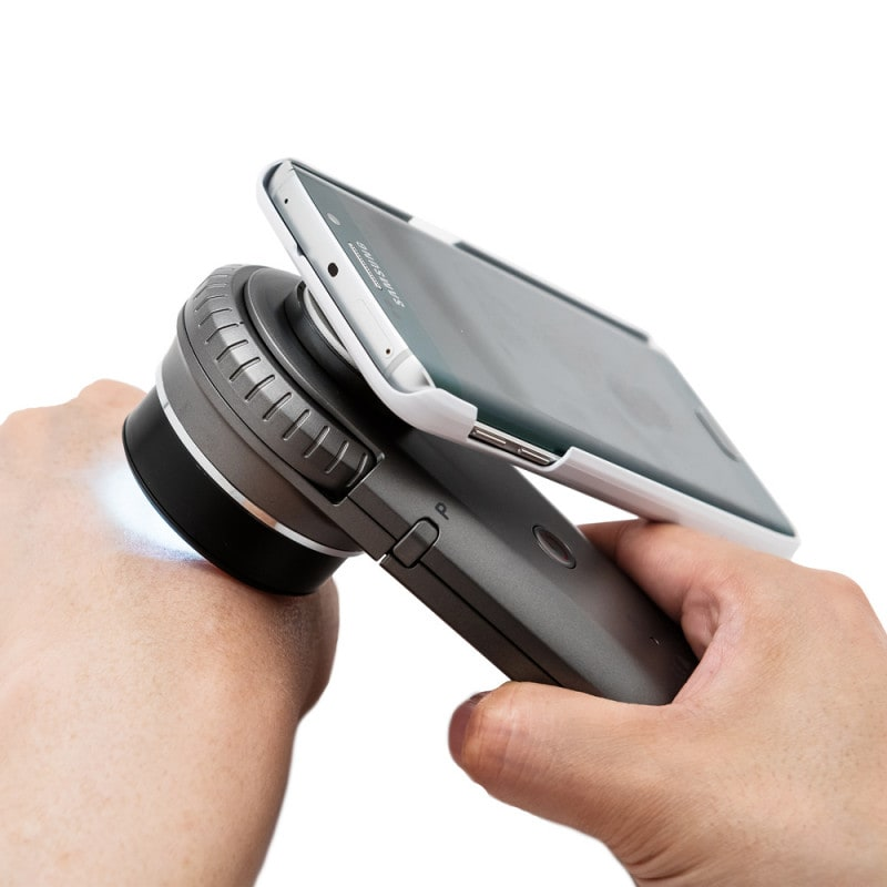 Dermatoscope adapter available for specific smartphones and tablets