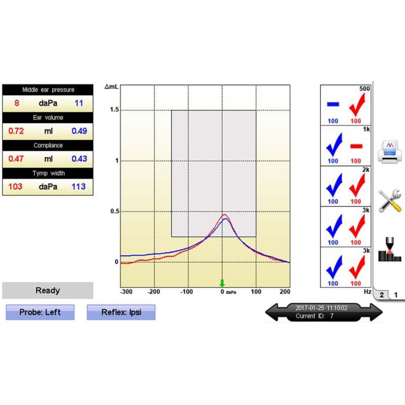 Oscilla T830 Screening-Tympanometer