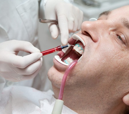 Application Cannulas for Use in Dentistry