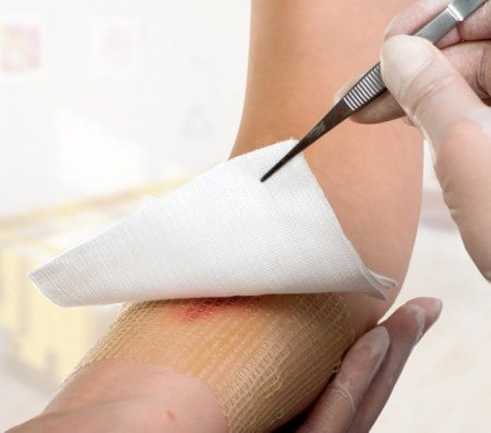Ointments & Hydrogel Dressings for Moist Wound Treatment