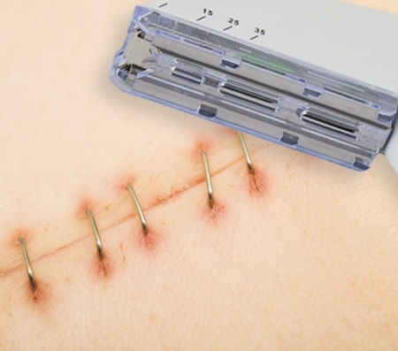 Skin Staplers for Closing Wounds with Wound Staples