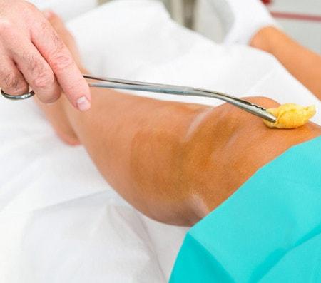 Medizinische und chirurgische Zangen für Praxis und OP