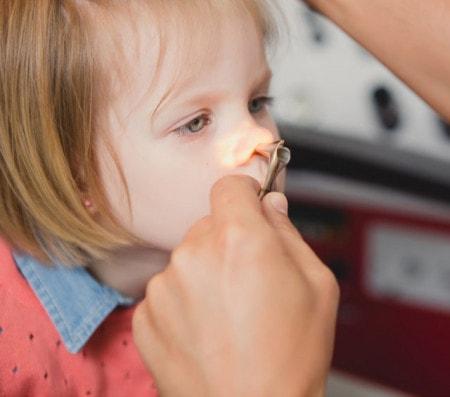 Spéculum nasal pour rhinoscopie