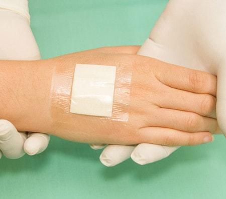 Pansements adhésifs pour un traitement des plaies et pour la fixation