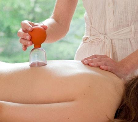 Schröpfgläser für Schröpftherapie und Schröpfkopfmassage