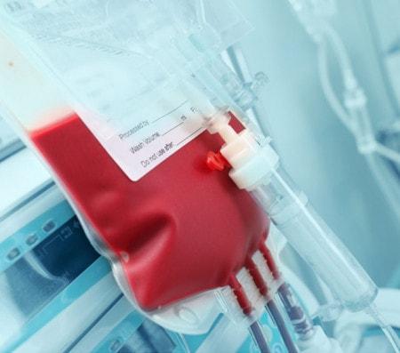 Apparecchi per trasfusione