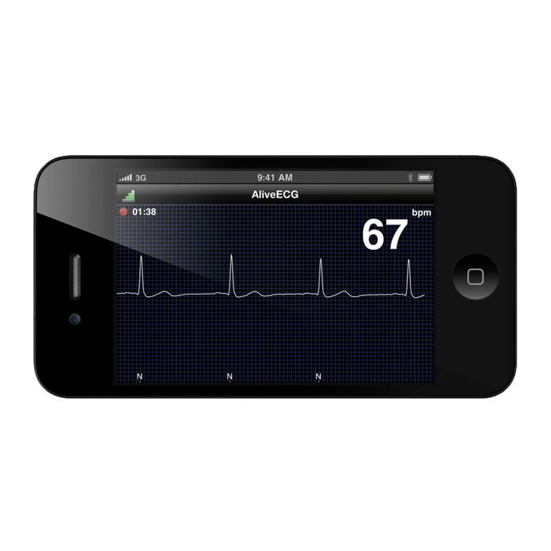 AliveCor Veterinär-EKG-Monitor | Praxisdienst