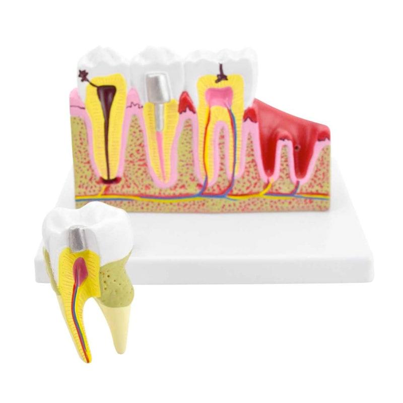 Modello dentale con malattie
