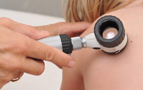 Dermatoscopen