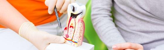 Modèles anatomiques dentaires
