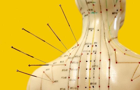 Akupunktur-Modelle
