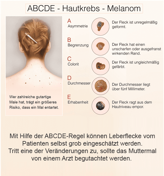 ABCDE-Regel zur Hautkrebs-Erkennung