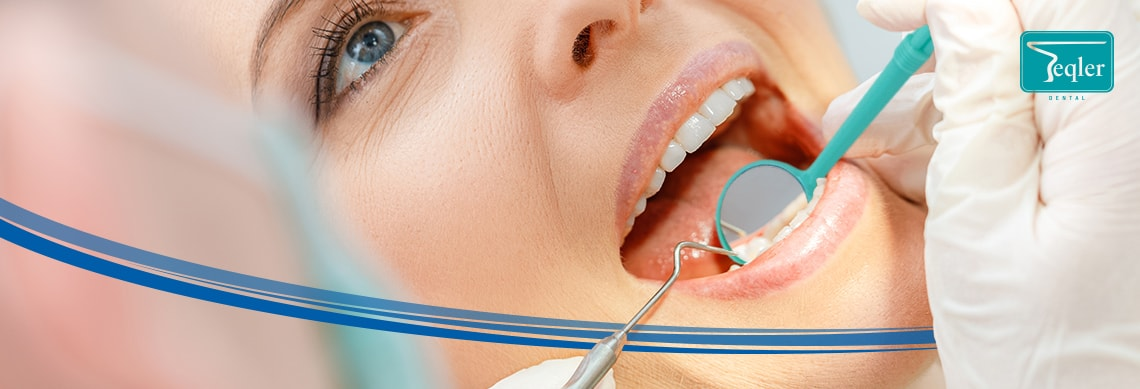 Sterylne lusterka stomatologiczne