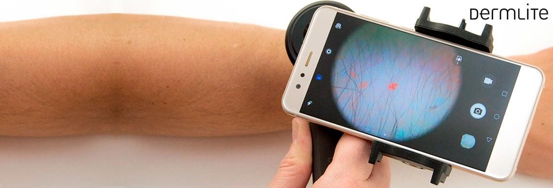 Smartphone-Dermatoskopie mit DermLite