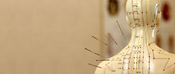 Akupunkturbedarf
