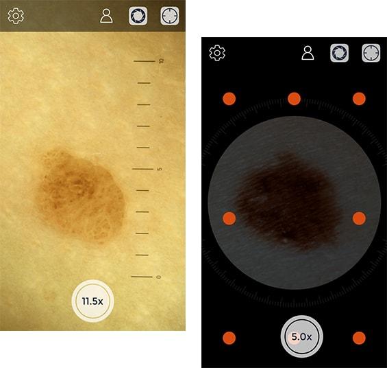 iC1 App Zoom