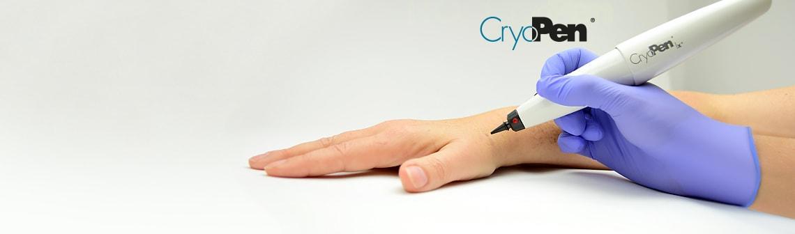 CryoPen | X+
