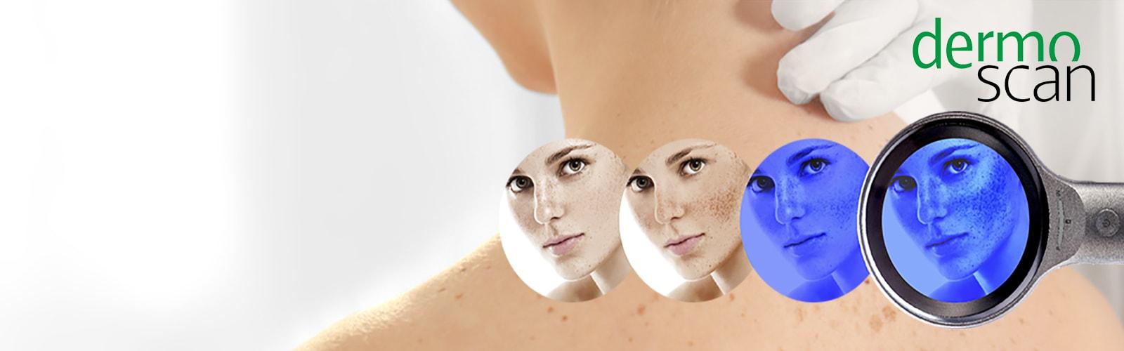dermoscan Skin Magnifier