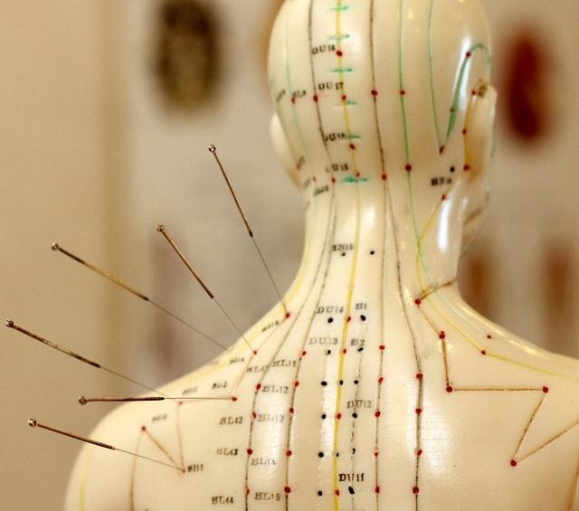 Aiguilles d'acupuncture pour l'acupuncture